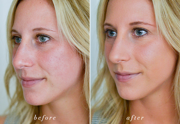 bare minerals before and after. bareminerals_bareskin_before_after bare minerals before and after i